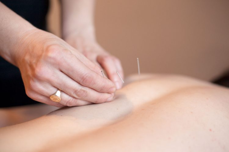 Photo showing hands applying acupuncture needles to a patient's back.