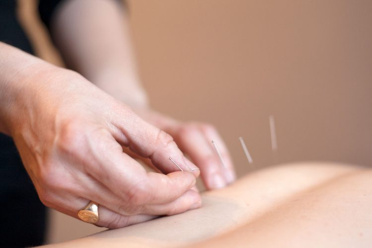 Essential-Acupuncture-Chicago-acupuncture-03