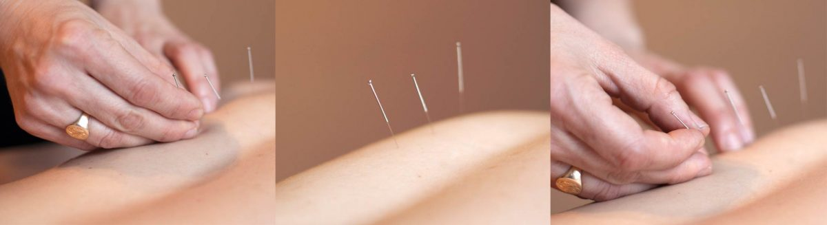 Essential-Acupuncture-Chicago-acupuncture-photos