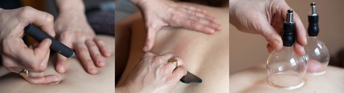 Essential-Acupuncture-Chicago-adjunct-therapies